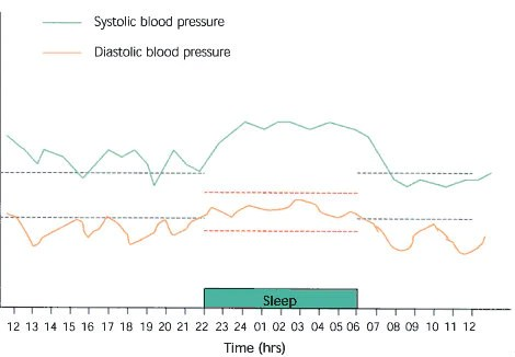 how to graph blood pressure over time - Onwebioinnovate