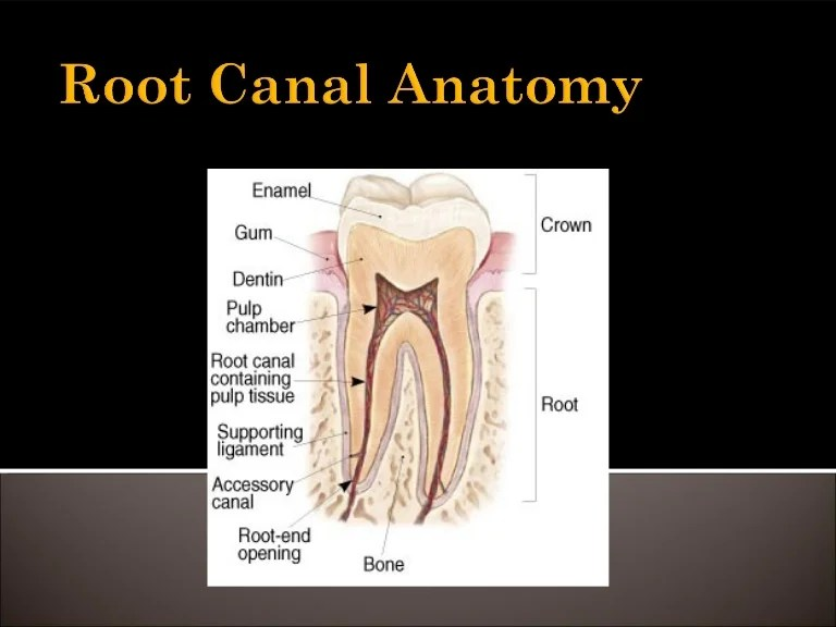 root canal definition