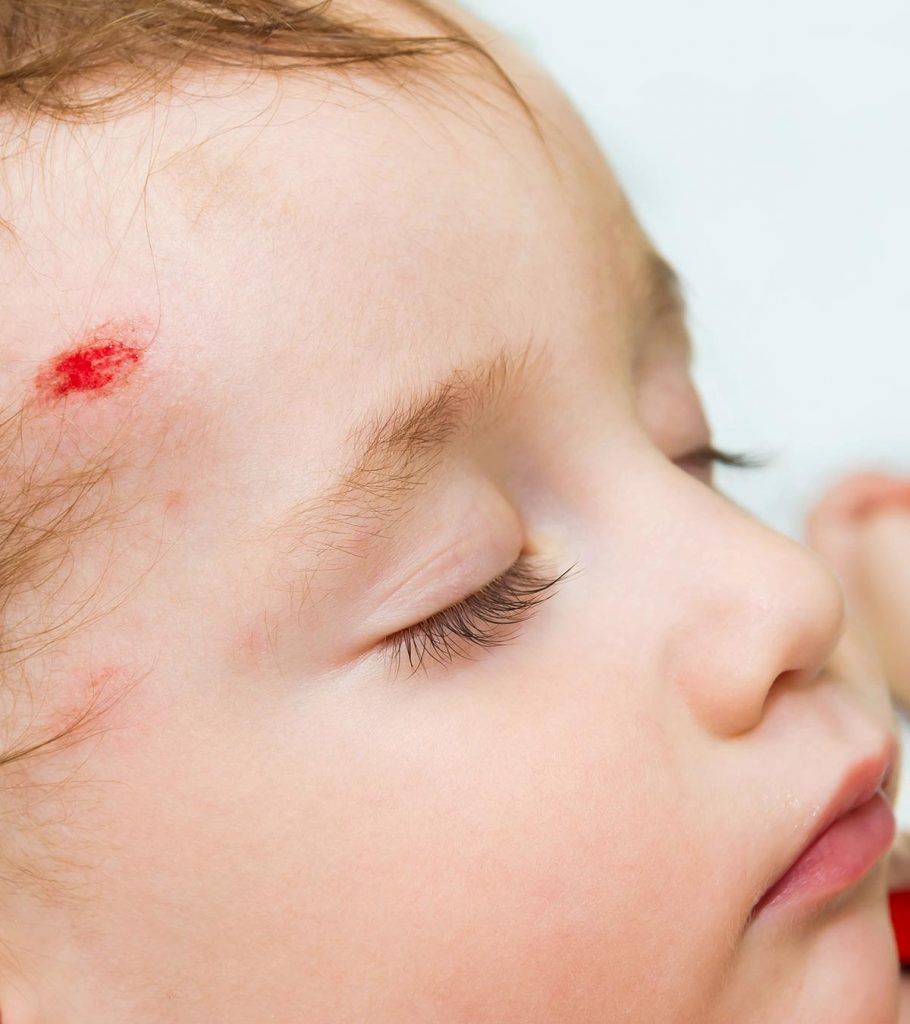 Newborn Infant Normally Suffer From 10 Signs Of Concussion In Babies And Ways To Treat It