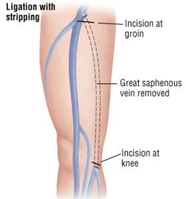 Treatment of varicose veins depends on their severity