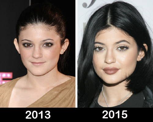 kylie-jenner-plastic-surgery-before-after-photos