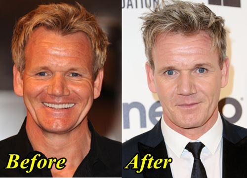 Male celebrity botox before and after pictures
