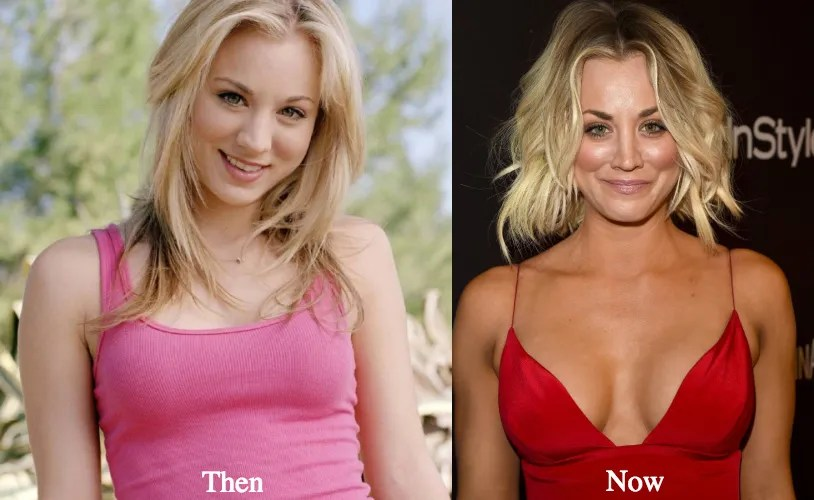 http://latestplasticsurgery.com/kaley-cuoco-plastic-surgery-before-and-after-photos/