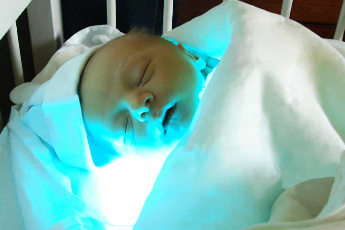 Newborn Babies Jaundice Treatment Cerebral Palsy And Jaundice Kernicterus Symptoms