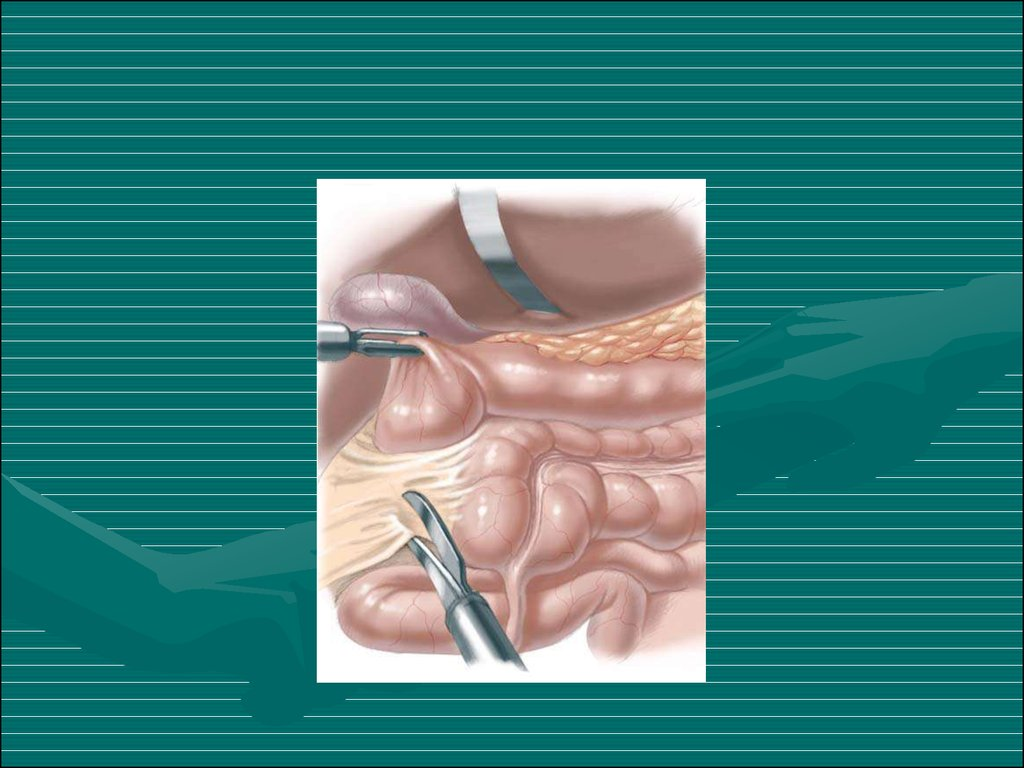 Newborn Infant Ppt Congenital Intestinal Obstruction Online Presentation