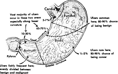 tumor vs ulcer diagram