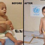 A Child Turns The Corner on Malnutrition in Aleppo