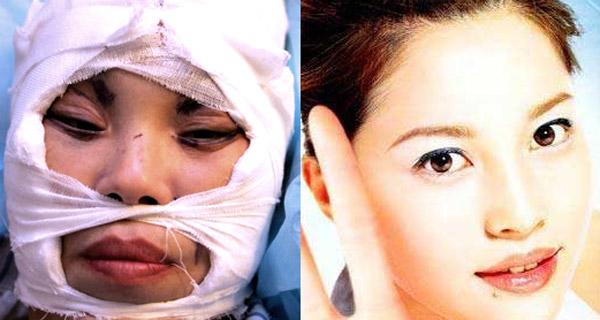 002chirurgiaestetica