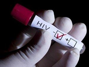 13. Conferencia de Sida 2012: Llaman a convertir en prioridad investigación sobre cura sobre del VIH