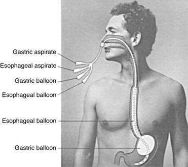 Balloon Tamponade cvfreelettersbrandforesight