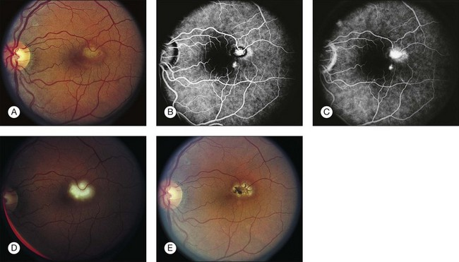 Ocular Histoplasmosis Clinical Gate - Presumed Ocular Histoplasmosis