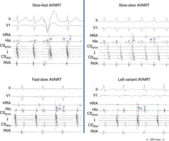 Atrioventricular Nodal Reentrant Tachycardia Clinical Gate