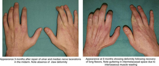 19 Tendon Transfers for Ulnar Nerve Palsy Clinical Gate