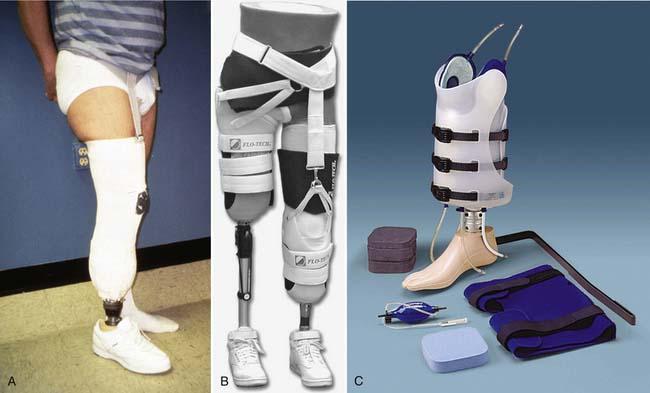 Rehabilitation and Prosthetic Restoration in Lower Limb Amputation
