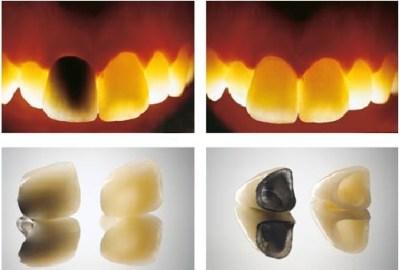ortodoncia biologica barcelona