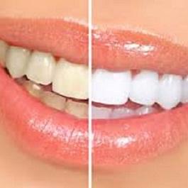 blanqueamiento dental Clinica Mariana Sacoto Navia imagen fija
