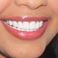 Clinica Mariana sacoto Navia Ortodoncia Invisible Barcelona Estética Dental