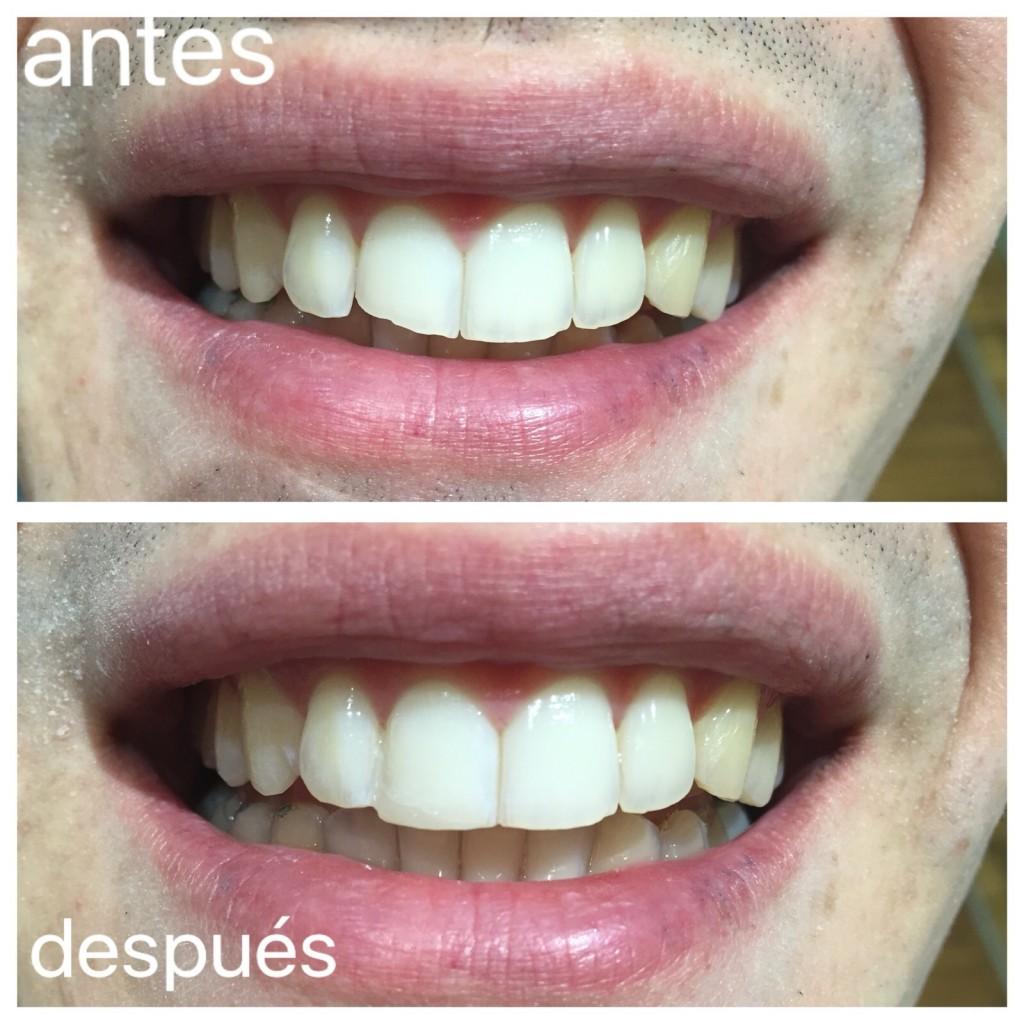 Clinica-Mariana-Sacoto-Navia-Especialistas-Estetica-Dental-Barcelona-1024x1024