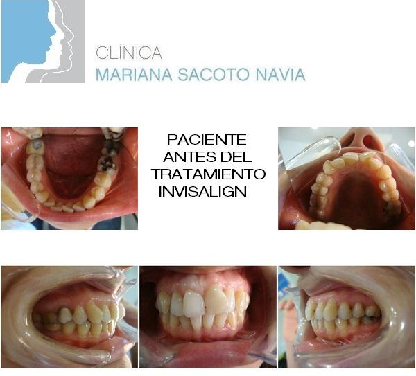 Paciente-Marta-G-L-antes-de-tratamiento-Invisalign