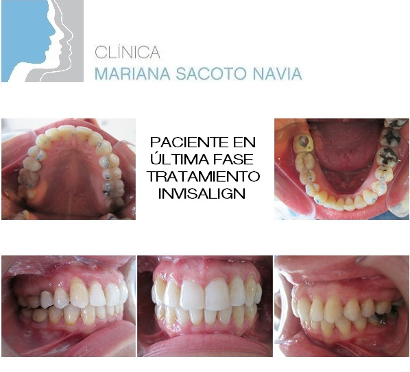 Paciente-Marta-G-L-fase-final-tratamiento-Invisalign