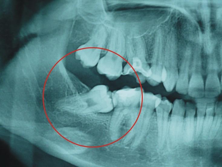 Resultado de imagen de Dolor de dientes y asco