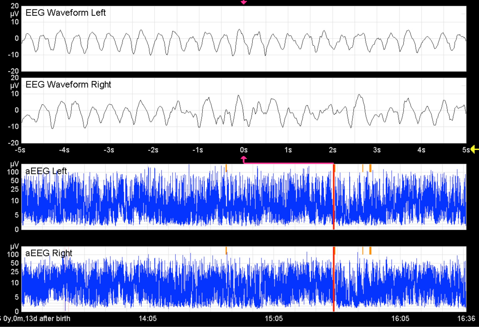 Cm Fu Berlin Application Of An Amplitude Integrated Eeg Monitor Cerebral