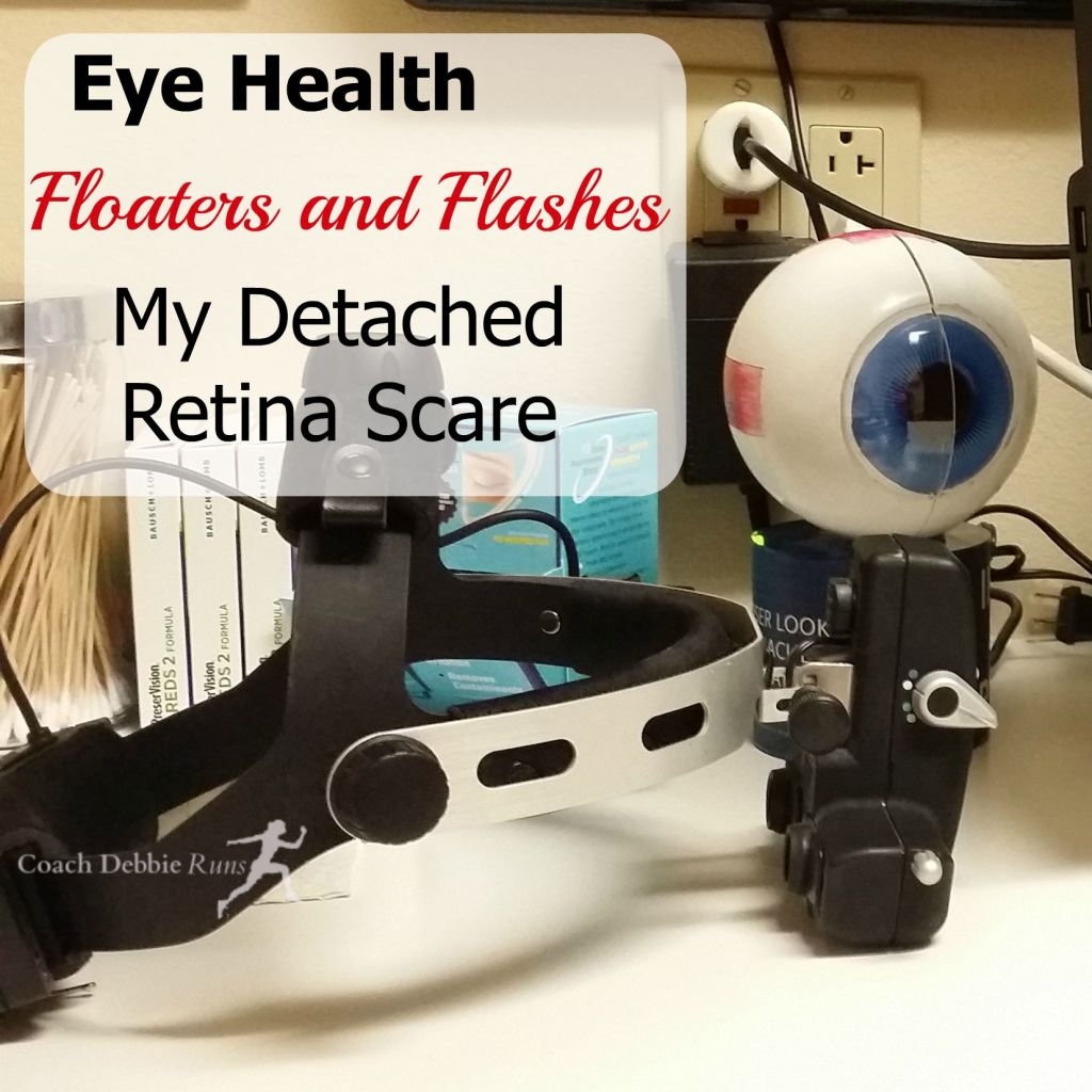 How is your eye health? Have you had floaters or flashes in your vision. Here's the story of my detached retina scare.