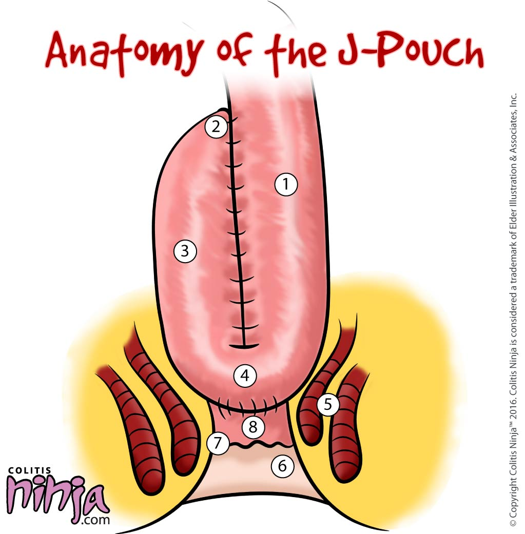What is a J-Pouch?   Colitis Ninja