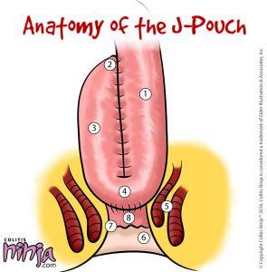 Jpouch Anatomy