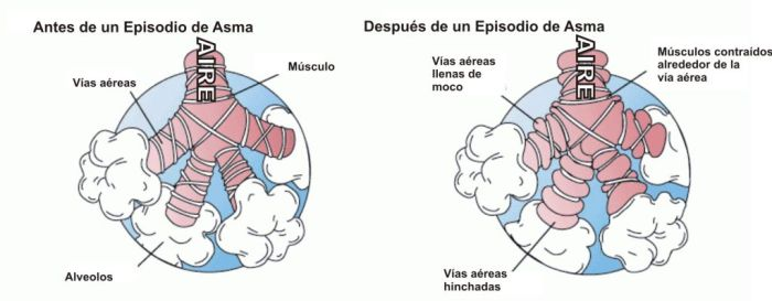 Qué sucede antes y después de un episodio de asma