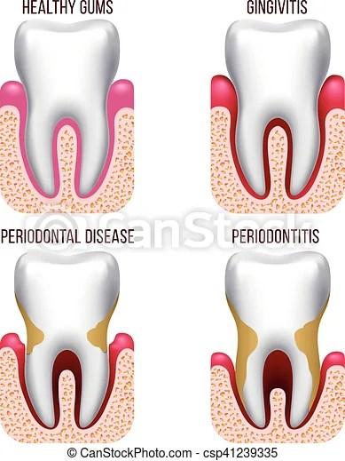 Human gum disease, gums bleeding tooth prevention dental, oral care