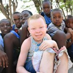 Albino body parts trade continues in Tanzania