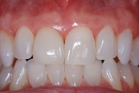 Zoom 2 Laser Teeth Whitening Reviews