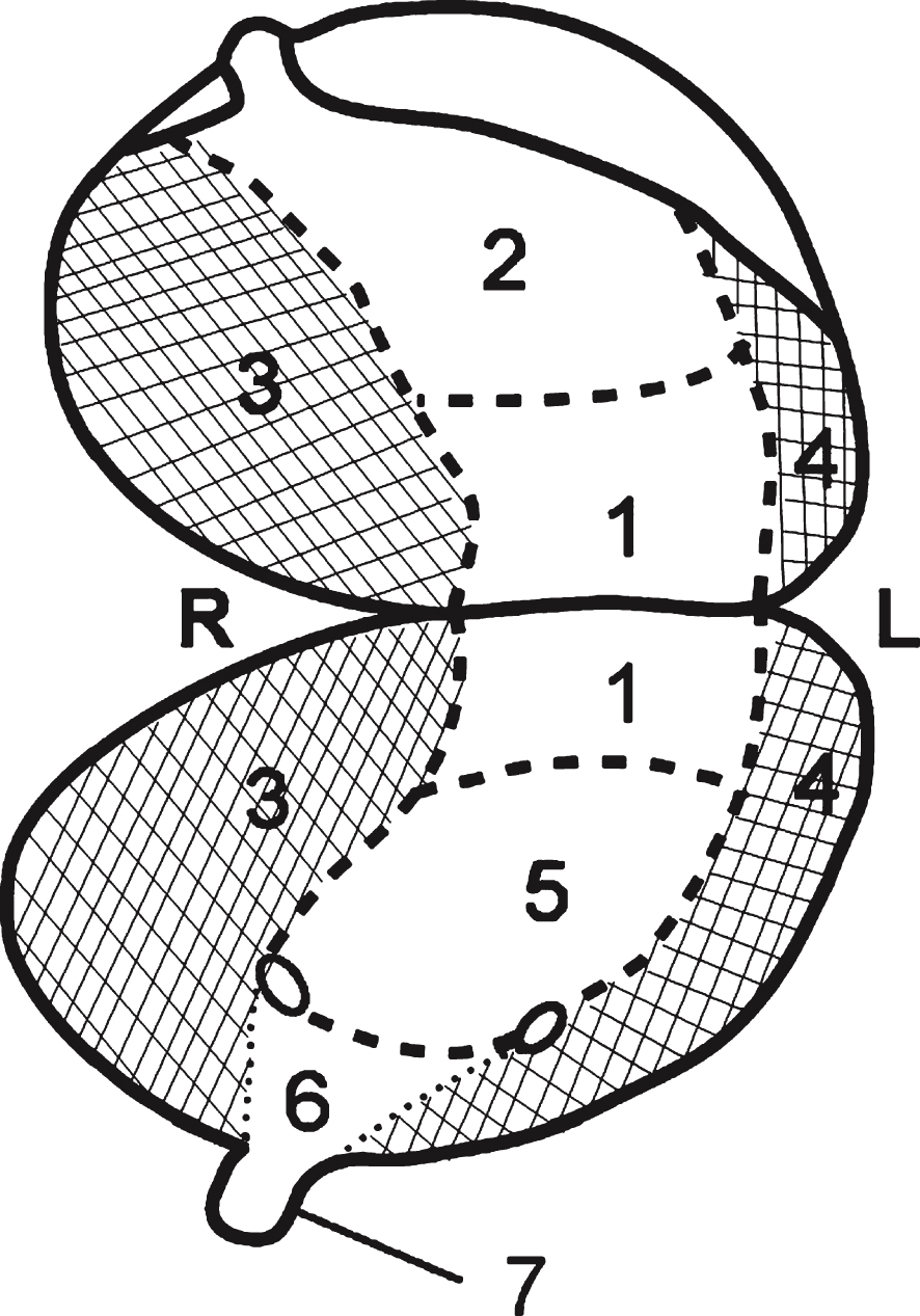 bladder wall diagram
