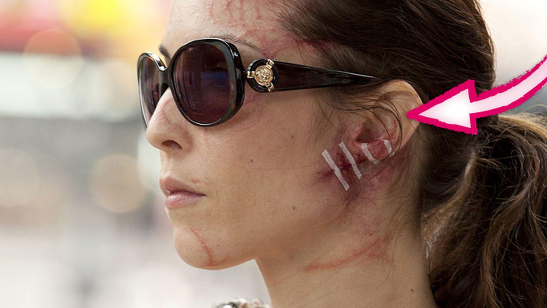 Fall In New York Wallpaper Blutig Noomi Rapace Gesicht Ist Schlimm Verletzt