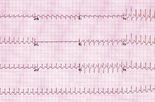 Atrioventricular Nodal Reentrant Tachycardia \u2013 Core EM