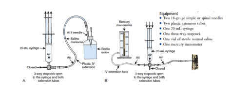 Mercury Manometer System Final Image (Roberts + Hedges)