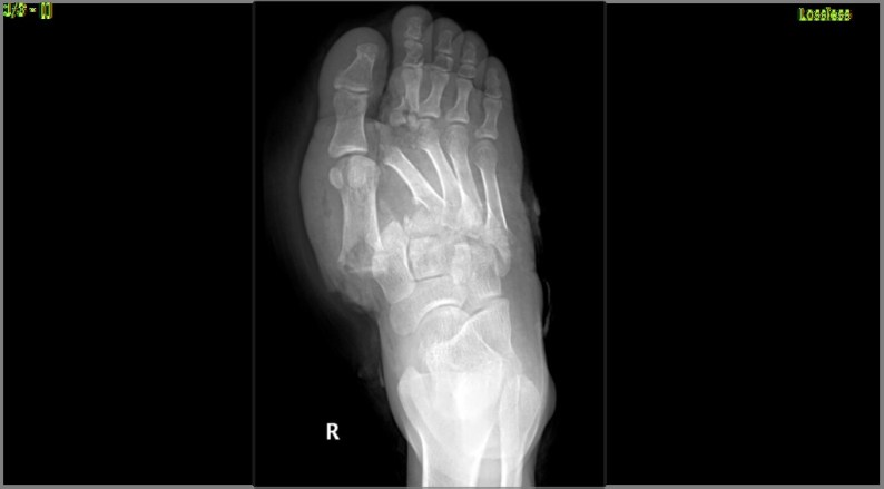 Divergent Lisfranc Injury