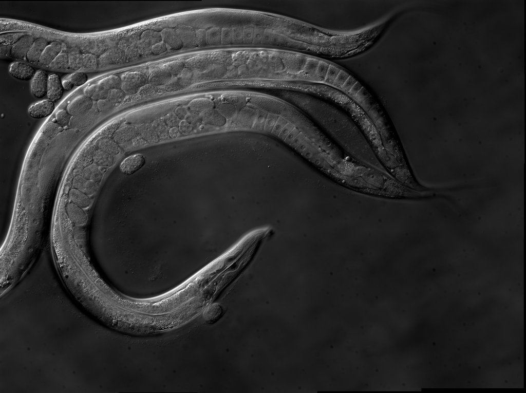Worm world | Research indicates that disabling the SET-26 gene in worms increases longevity, bringing hope that a similar effect might be seen in humans.