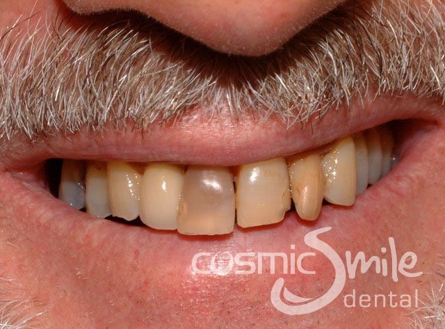 Internal Bleaching Cosmetic Dentist Neutral Bay, Sydney Cosmic