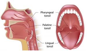 Can Tonsil Stones Cause Blood In Phlegm
