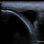 Knee-effusion