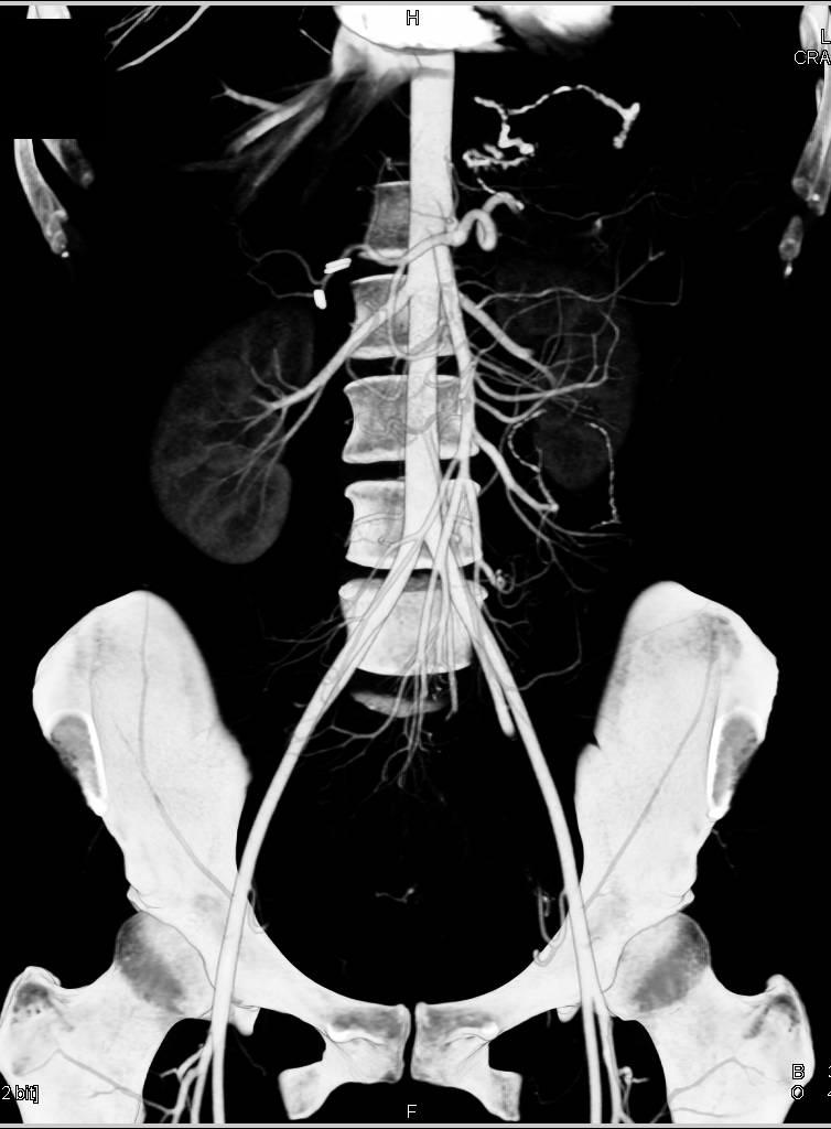 SMA Syndrome - Gastrointestinal Case Studies - CTisus CT Scanning
