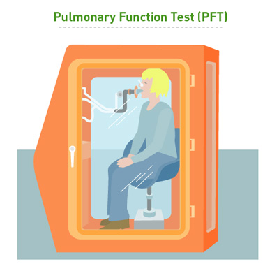 Pulmonary Function Test CureSearch