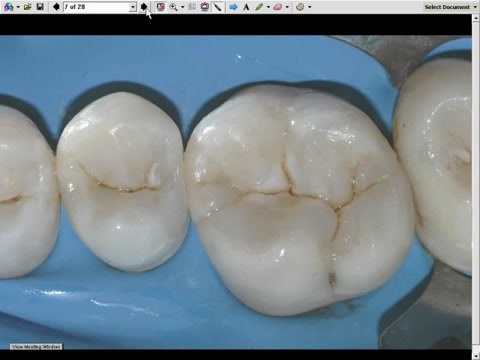 Challenging Composite Restoration With Free-Hand-Bonding An