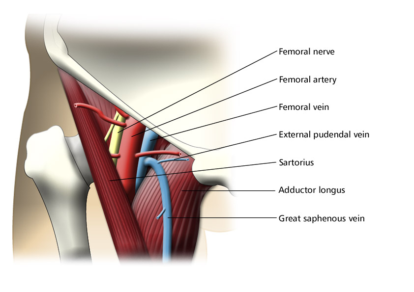 Femoral Triangle (Labeled) on Meducation - femoral triangle