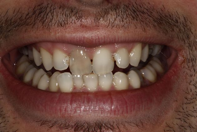 Teeth Whitening, Internal bleaching and bonding