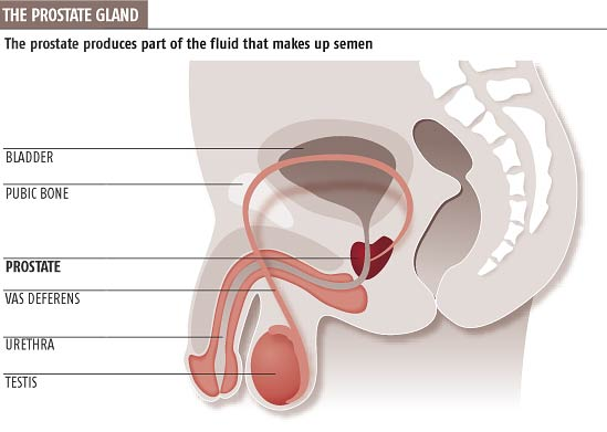 advanced prostate cancer stages symptoms
