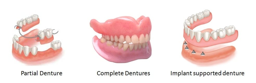 Dentures Guide on Dental Dentures Prices, Procedure  Reviews