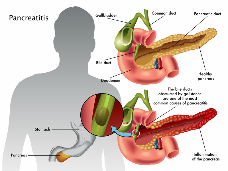 Pancreatitis Overview - Harvard Health